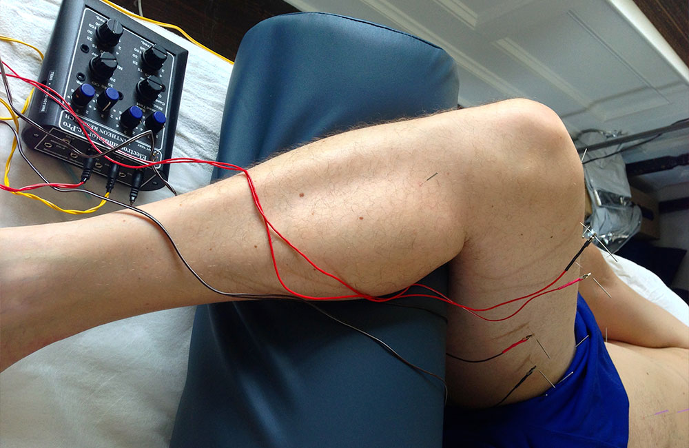 Electric Muscle Stimulation - Electrical muscle stimulation (EMS), also known as neuromuscular electrical stimulation (NMES) or electromyostimulation, is the elicitation of muscle contraction using electric impulses. EMS has the potential to serve as: a strength training tool for healthy subjects and athletes; a rehabilitation and preventive tool for partially or totally immobilized patients.