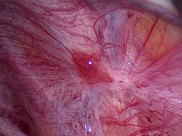 red-active-endometriosis.jpg