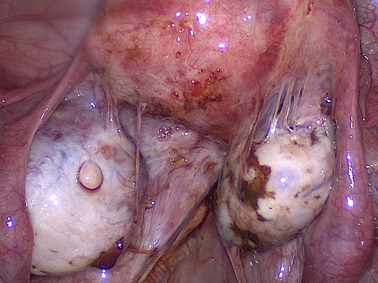 adhesions of ovaries due to em.jpg
