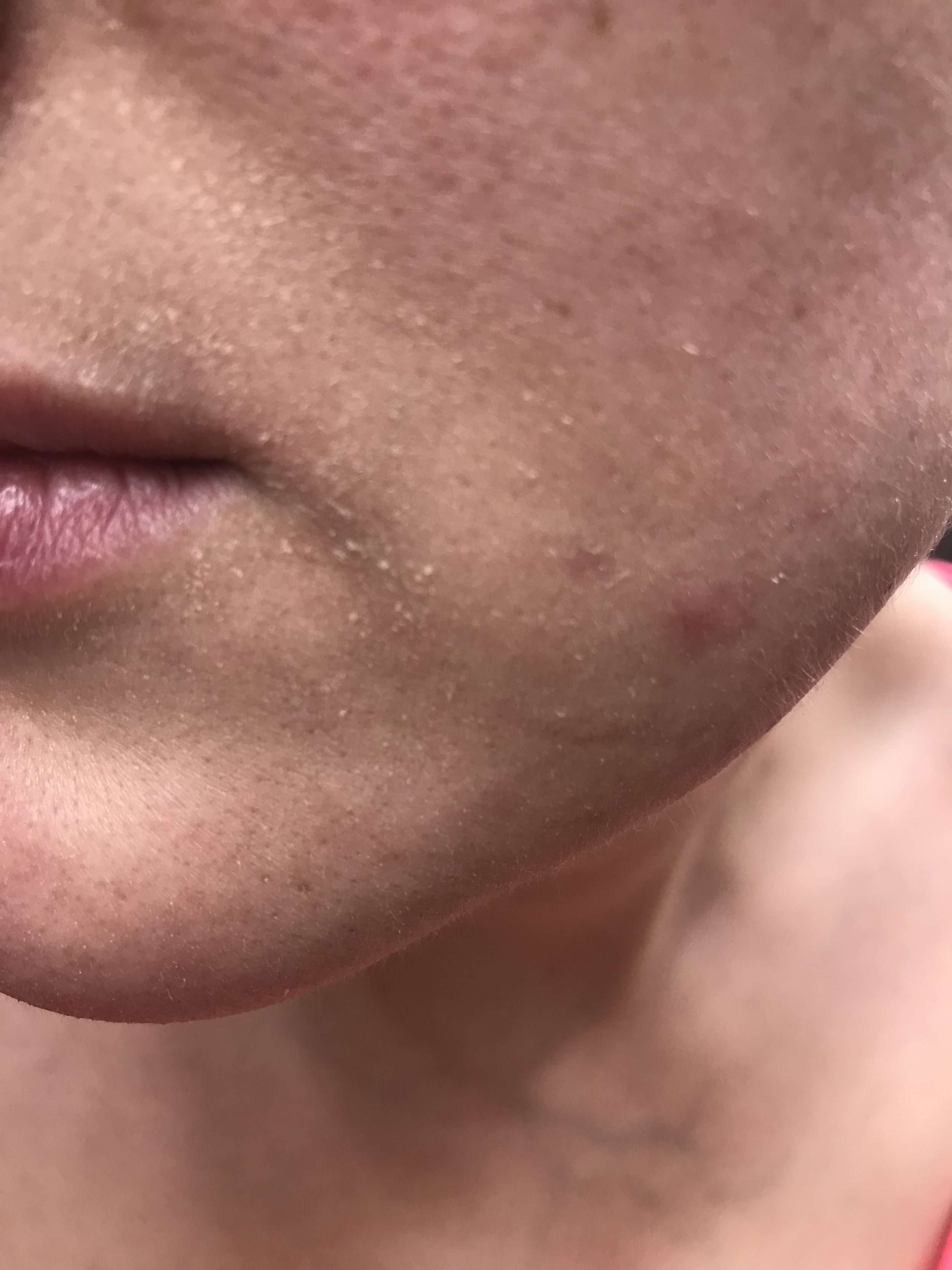 My Updated Skincare Routine Using NeoStrata