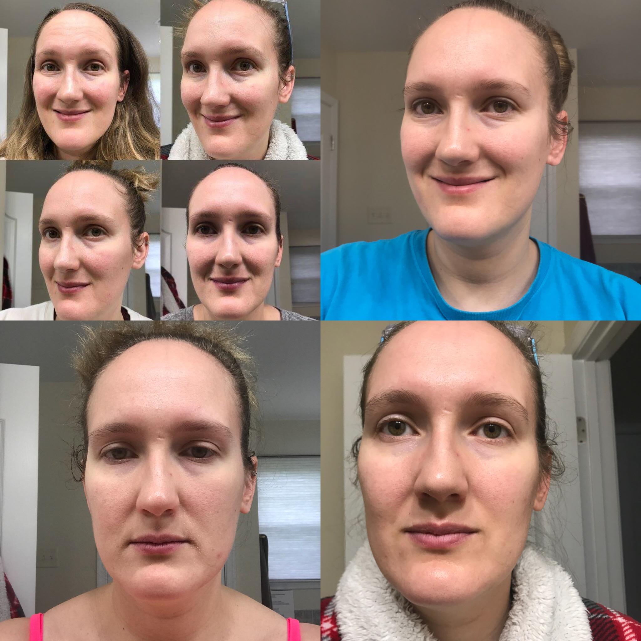Top Left corner: June 2018, Top Right August 4th, Left bottom Corner, August 12th, Right Bottom corner, August 14th.