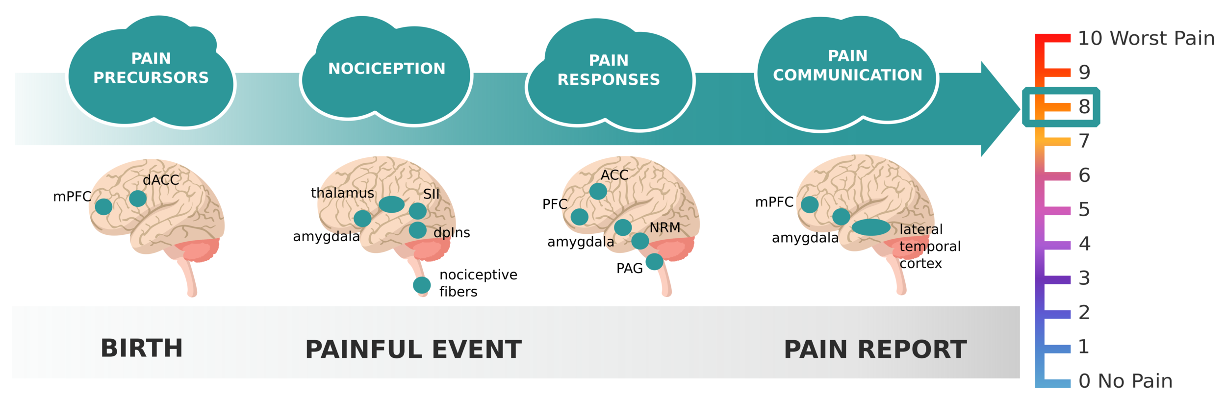neurocultural model of pain