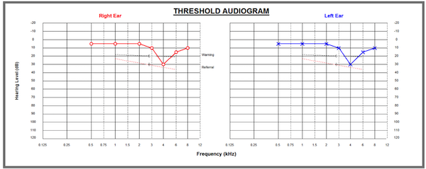 Audiometry result from a hearing test at work - the type of result we give