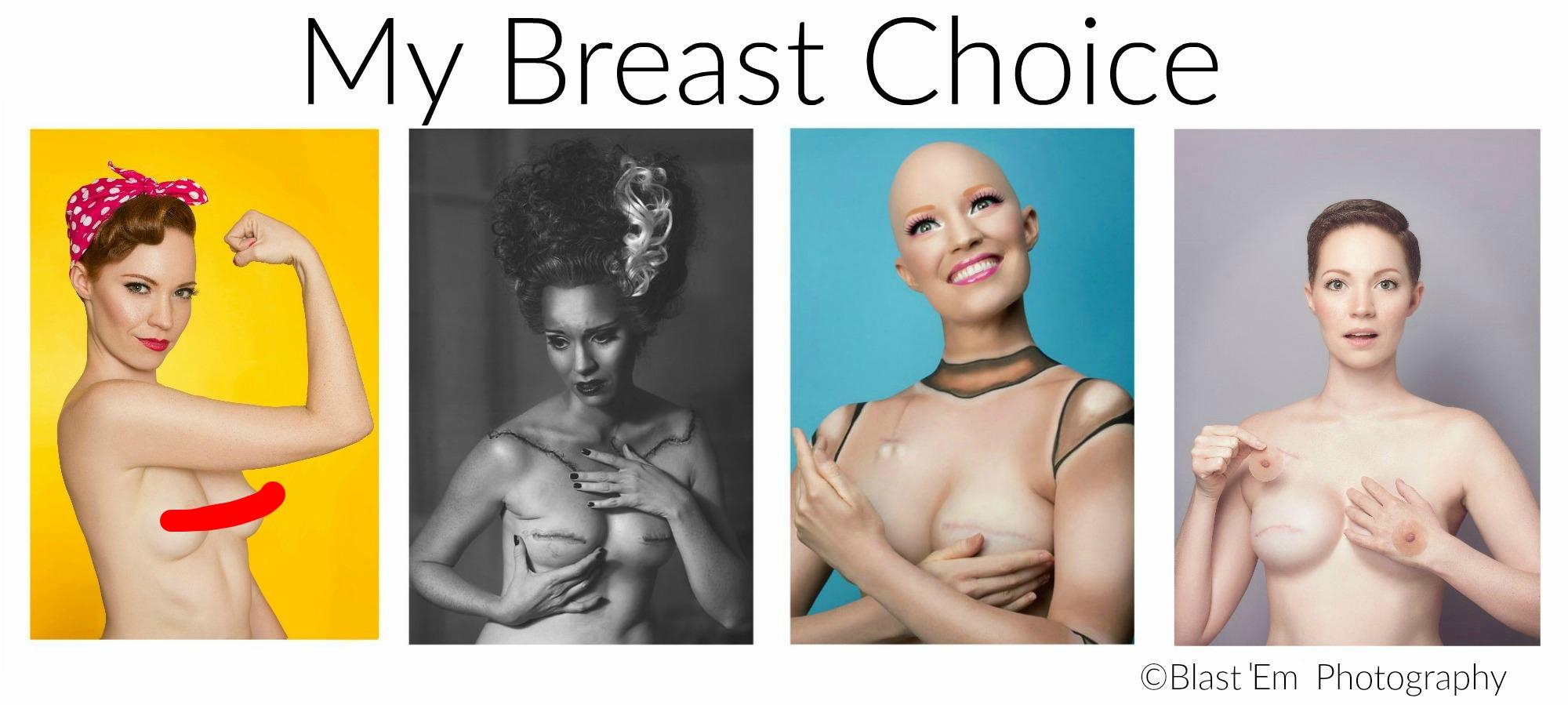 Mastectomy Photo Series Bride Of Frankenstein Aniela My Breast Choice