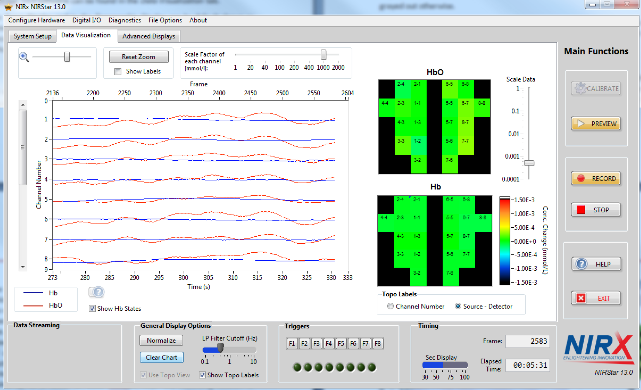 NIRS NIRStar Topomaps and data viewer.png