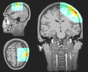 4) Tomographic brain imaging with fNIRS system by NIRx