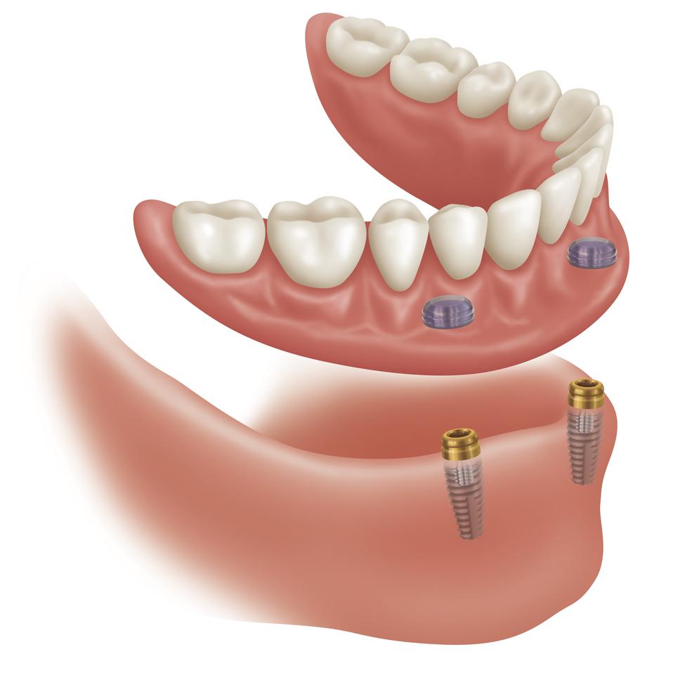 supported-dentures1.jpg