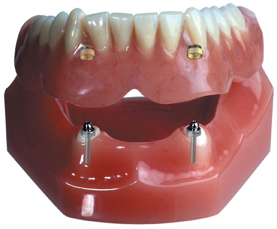 Denture-Implant-Supported.jpg