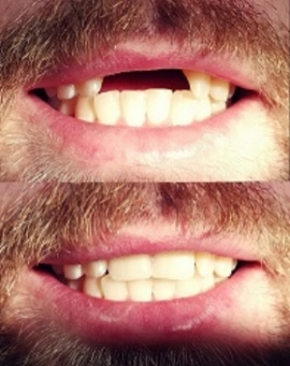 Partial Upper Denture - patient only had 2 anterior teeth missing