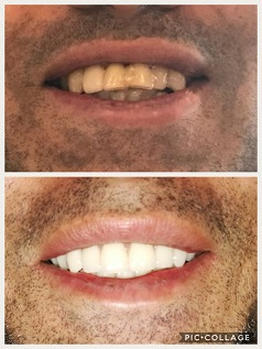Immediate Upper & Lower Dentures - Patient had all of their teeth extracted on both arches, and had these dentures ready before hand, so that as soon as the teeth were extracted the dentures could be inserted. Patient did not ever go without teeth.