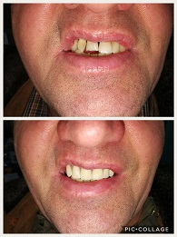 Immediate Partial Upper Denture - Patient had anterior teeth extracted.
