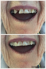 Partial Upper Denture - patient had a couple of teeth extracted and teeth were added to her partial.