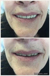 Complete Upper Denture - The top photo is the AFTER and the lower photo is the BEFORE.
