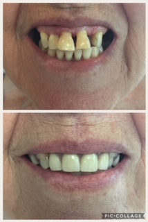 Immediate Partial Upper Denture - Patient had 3 anterior teeth extracted, this prosthesis was made before hand, therefore, patient was never without anterior teeth.