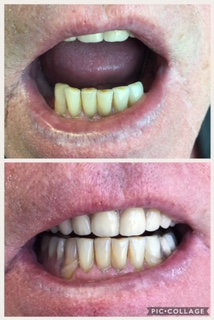 Partial Lower Denture - Patient needed a partial as they only had the 6 anterior teeth remaining. Fabricated a partial lower denture with clear clasping so that the clasps would be less visible and noticeable.