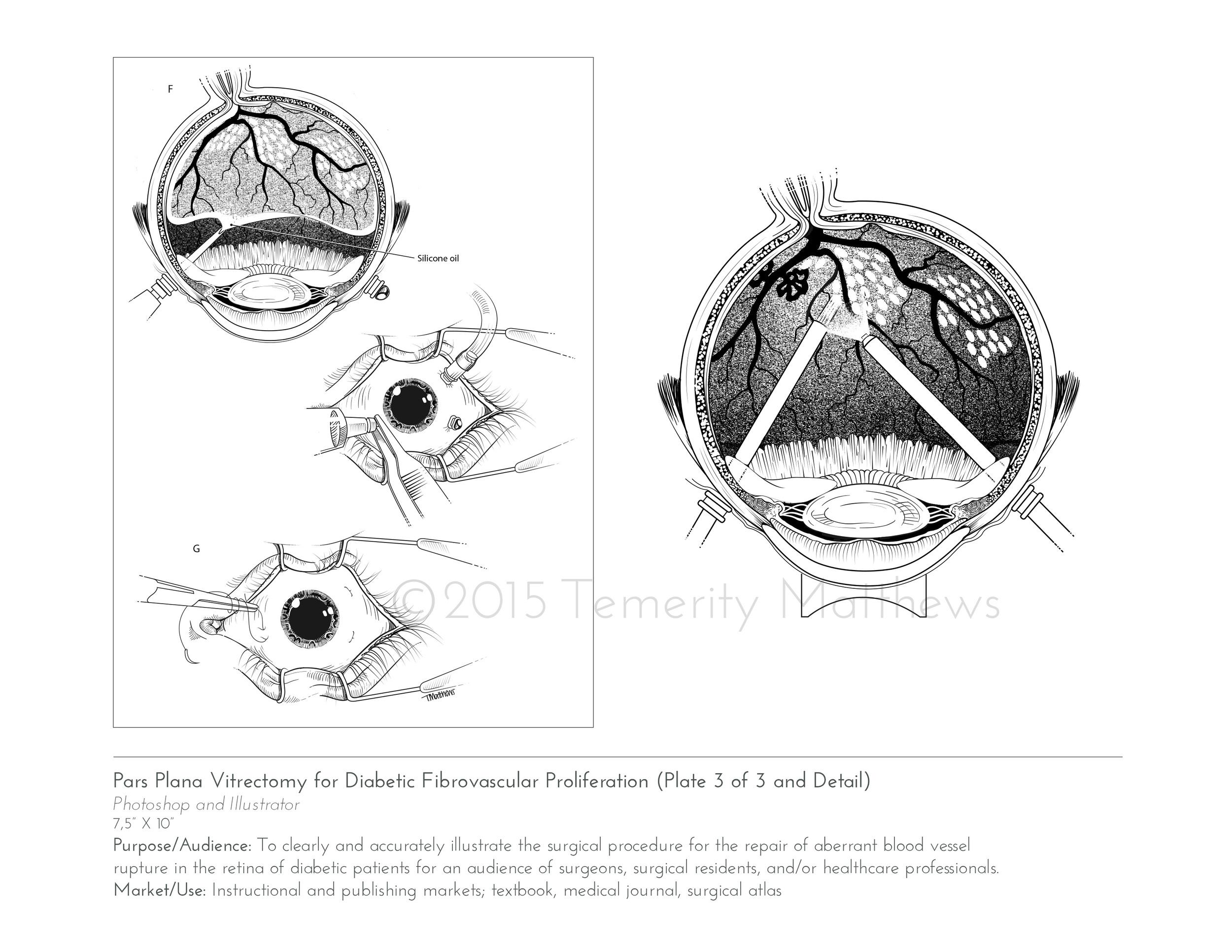 vitrectomy2.jpg
