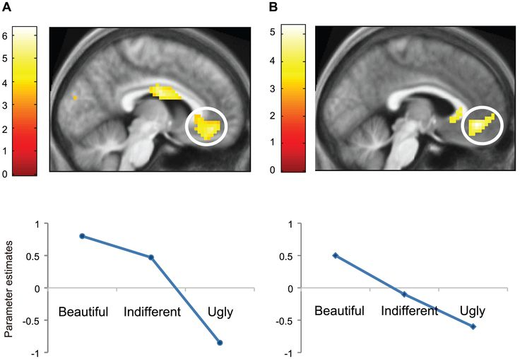 "Figure 2: Brain activations related to the experience of beauty from Zeki's and Ishizu's paper, ""Toward A Brain-Based Theory of Beauty."""