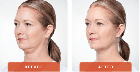 Kybella-Before-After5.png