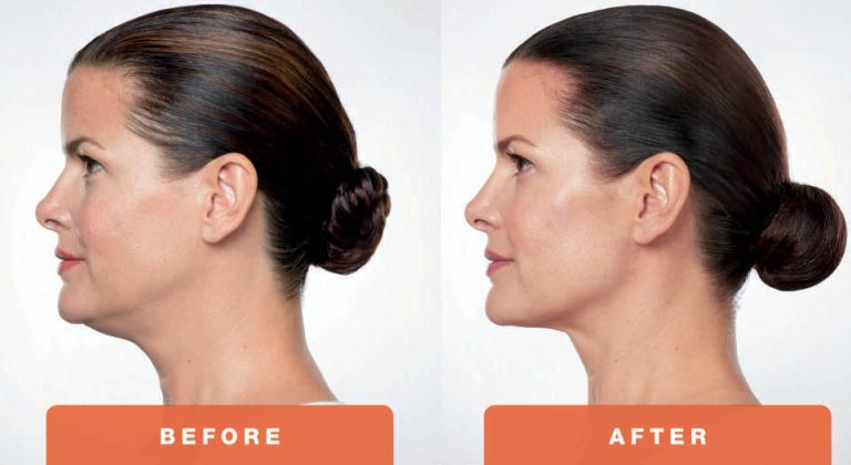 Kybella-Treatment-Before-and-After-Photo.jpg