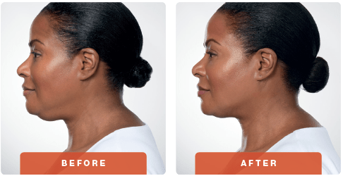 Kybella-Before-After3.png