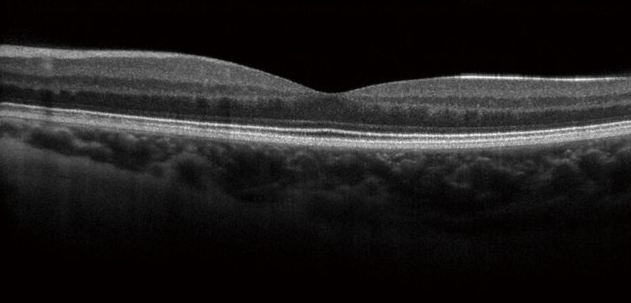 3D image of the macula