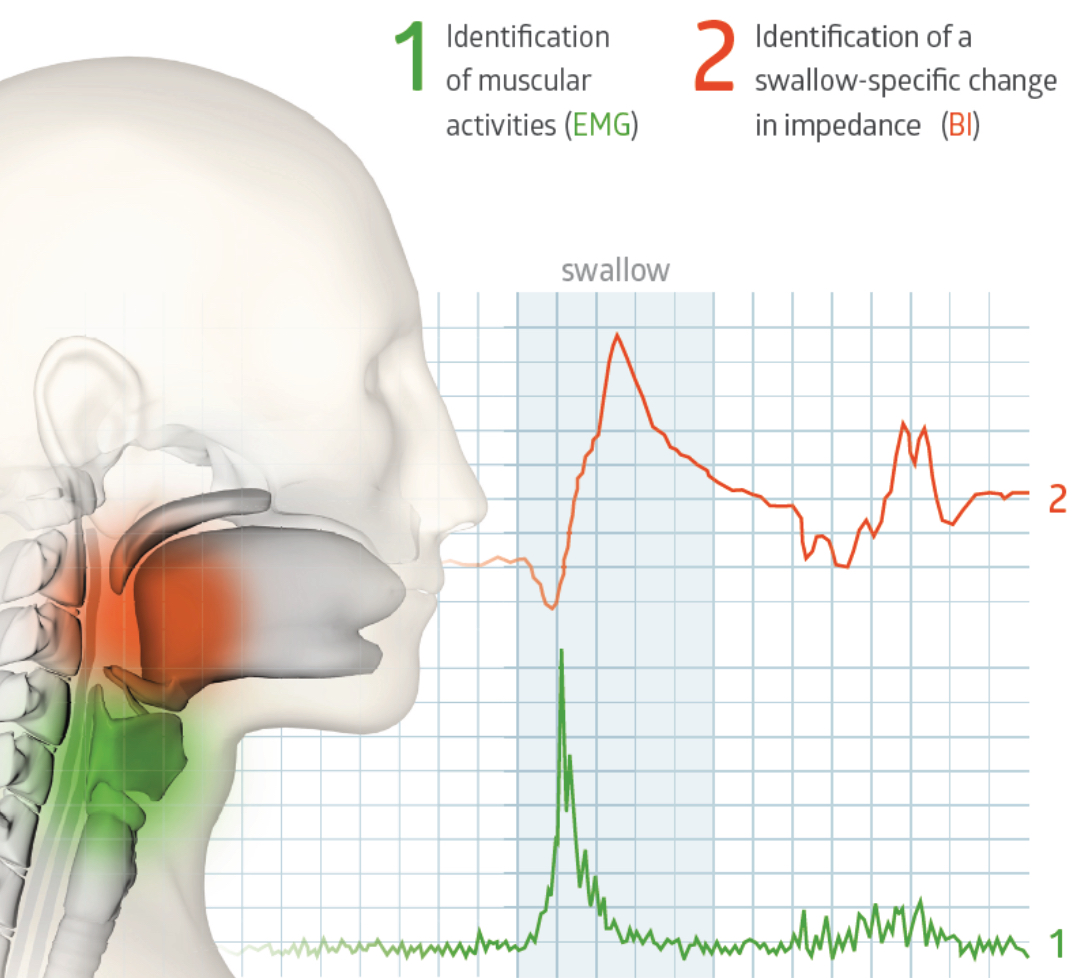 RehaIngest uses two biological signals to classify the act of swallowing