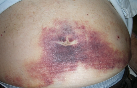 Cullen's sign, ecchymosis in the subcutaneous fat around the umbilicus, which isassociated with Grey-Turner's sign (bruising on the flanks). This can indicate pancreatic necrosis with retroperitoneal bleeding.