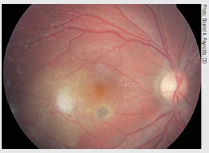 An example of focal infective chorioretinitis  https://www.reviewofoptometry.com