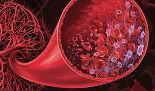 Thrombotic microangiopathy