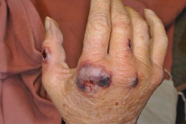A case of Sweet's Syndrome with similar dermatologic findings.      Reference      article