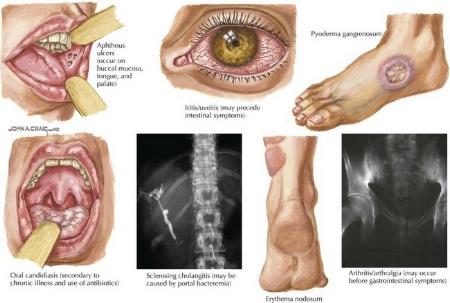 Some extraintestinal manifestations of IBD