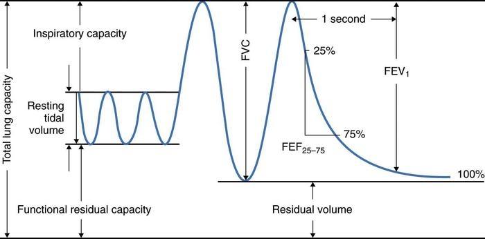 pulmonary-function-fig1_large.jpg