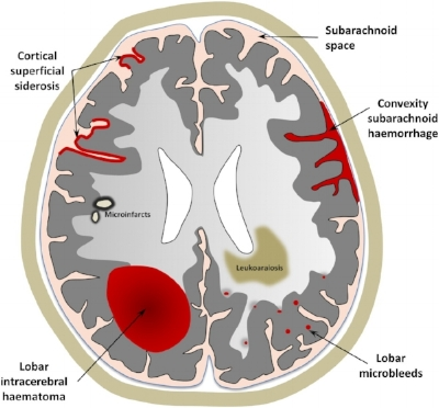 The important MRI correlates of CAA include:Cerebral micro bleeds,White matter changes (leukoaraiosis),Convexity subarachnoid hemorrhage,Cortical superficial siderosis, and Silent acute ischaemic lesions