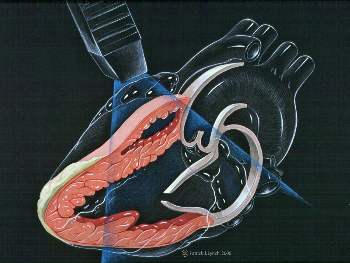 Echo_heart_parasternal_long_axis_(CardioNetworks_ECHOpedia).jpg