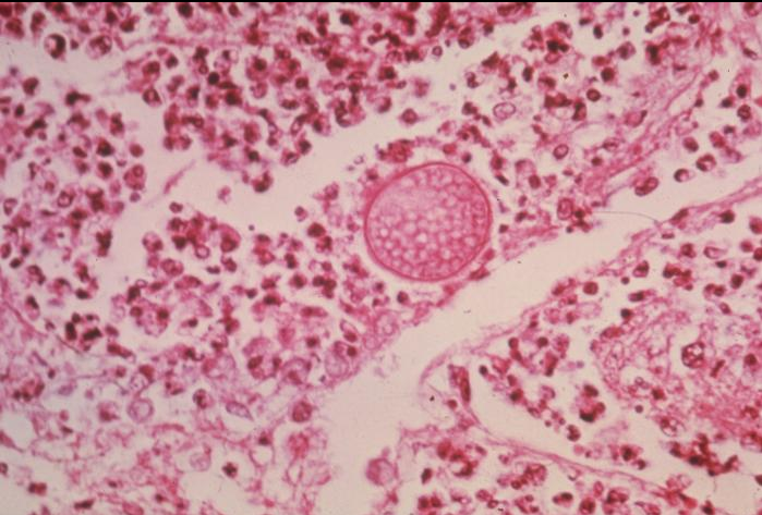 coccy lung spherule.PNG