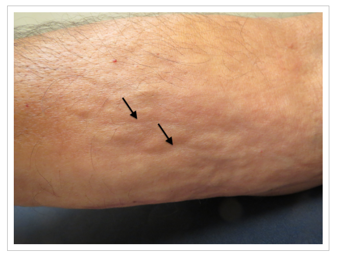 "The ""groove sign"": skin furrowed along the course of veins as a result of fascial sclerosis. This is accentuated by elevation of the limb. Image courtesy of the  International Journal of Dermatology"