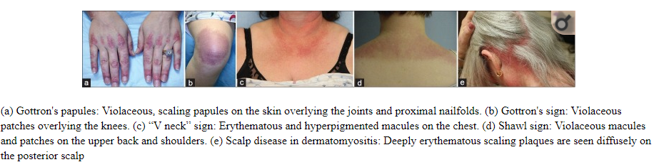 Figure courtesy of •Clinical Presentation and Evaluation of Dermatomyositis  Indian J Dermatol . 2012 Sep-Oct; 57(5): 375–381.