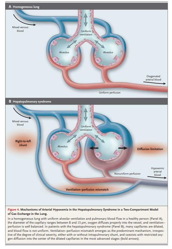 Hepatopulmonary System Image.JPG