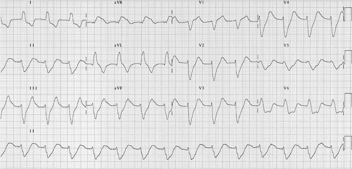 Yikes! He had a normal EKG prior.   Let's point out some of the scary changes here:   1. Where are the P waves? are they gone entirely or just very small?  2. Are those T waves peaked?  3. Why is the QRS suddenly so wide?