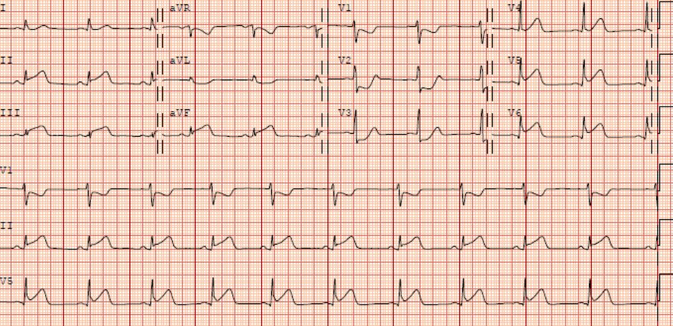 Yikes! Residents quickly identified the ST elevations in the inferior & lateral leads with reciprocal ST depressions.  How is this different than the EKG changes seen in acute pericarditis? In pericarditis, the ST elevations are typically diffuse and concave with associated PR-segment depressions. Reciprocal ST depressions (as seen in this EKG), are not expected in pericarditis.