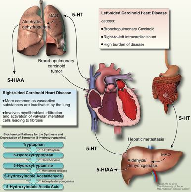 Pathophysiology  Reference:  https://heart.bmj.com/content/103/19/1488.full