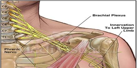 Brachial-Plexus.jpg
