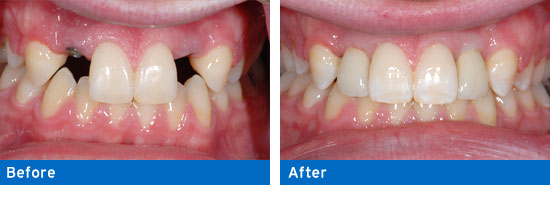 Dr. Tavoularis provides implant crowns to fix missing or damaged teeth.