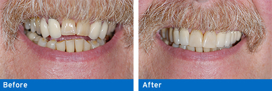 Incredible tooth replacement before and after.