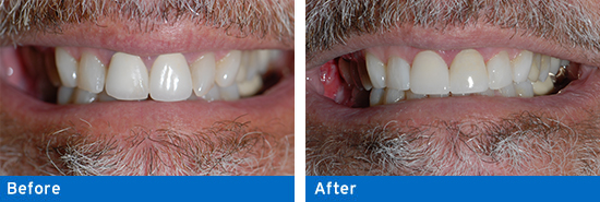Replacing porcelain crowns to give a more natural appearance.