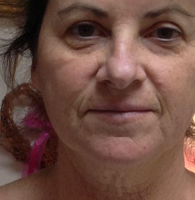 Cosmetic Rejuvenation - Before