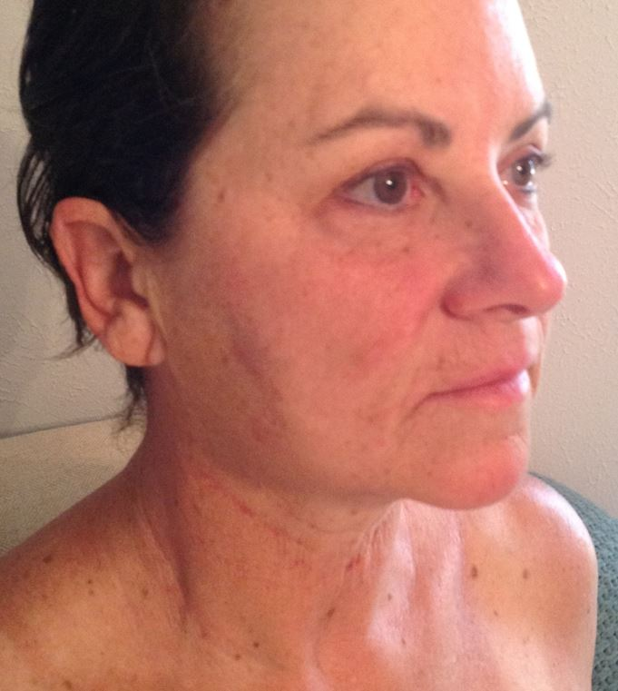 Cosmetic Rejuvenation - After
