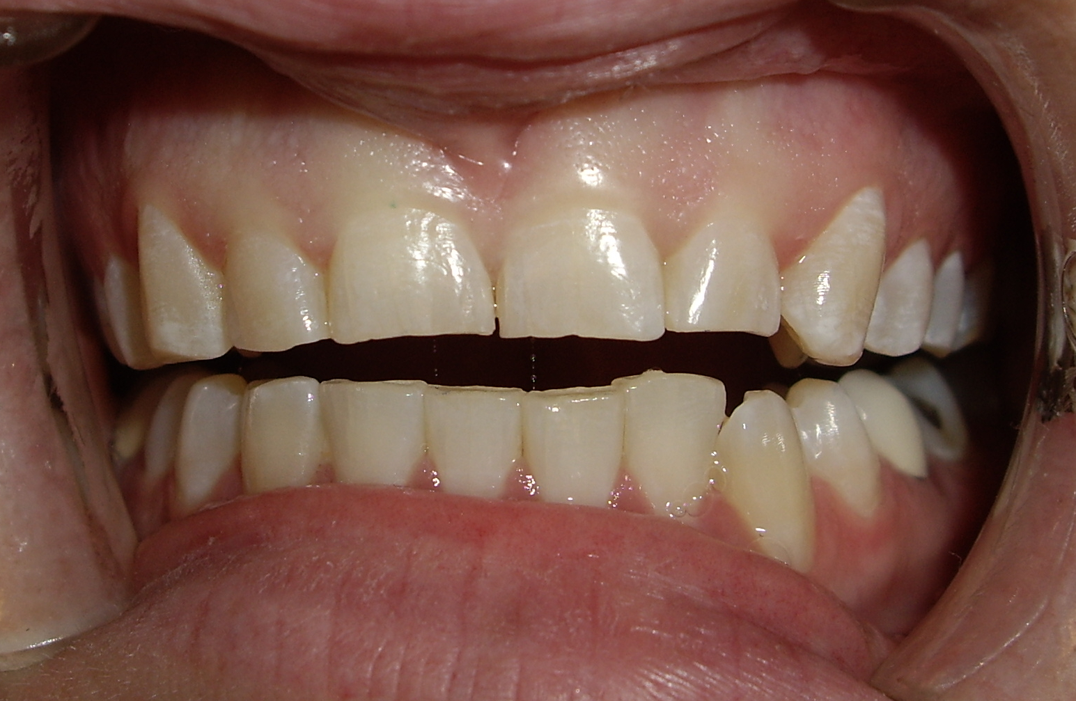 Before treatment  Young female with chronic history of bruxism (teeth grinding). She had significant wear on her maxillary incisors and canines. Her main concern was regaining her full smile for her wedding.
