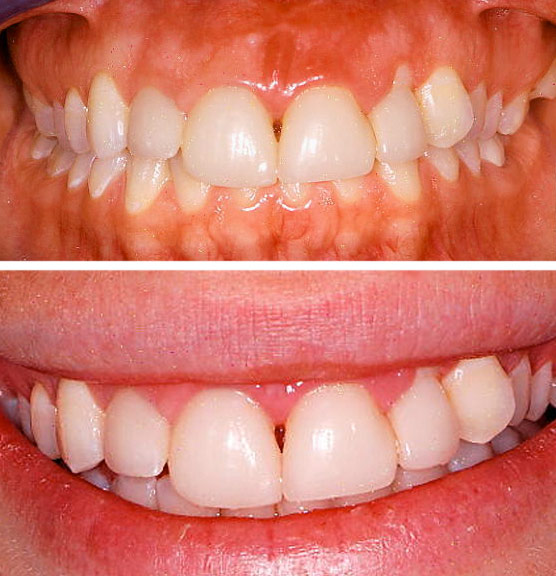 Before treatment  Patient presented with unusual gum recession upper left incisor that was undesirable to the patient. Also, the patient's previous crowns were low and not in line with her other teeth. She wanted to address both the gum recession and the asymmetrical crowns on her top four teeth.
