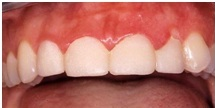 During treatment:  To achieve optimal esthetics, crown lengthening, or raising the gum tissue on the upper incisors was necessary. The removal of the existing crowns and placement of temporary crowns was necessary to visualize the final crown/gum height.